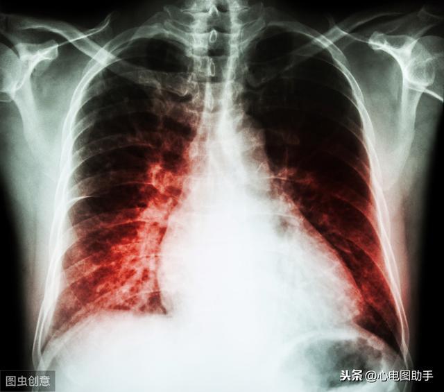 中度心影增大,卢老师实战临床心电图系列:限制型心肌病-异常QS波