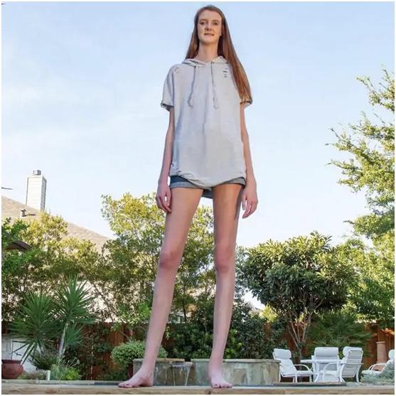 1米35!美国17岁少女打破世界最长腿纪录【www.smxdc.net】 全球新闻风头榜 第2张