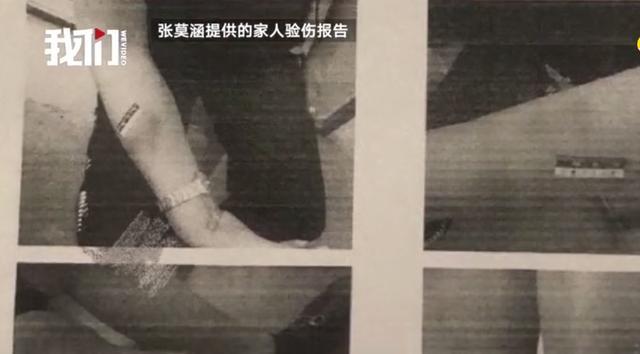 张培萌妻子曝光家暴称想夺回女儿抚养权,男方:无中生有 全球新闻风头榜 第4张