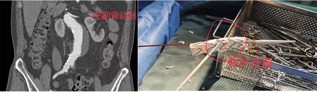 北大医疗鲁中医院胸心血管外科成功开展多种高精尖手术