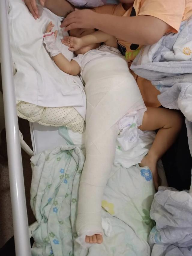阜阳市妇女儿童医院实施发育性髋关节脱位骨盆截骨复位手术