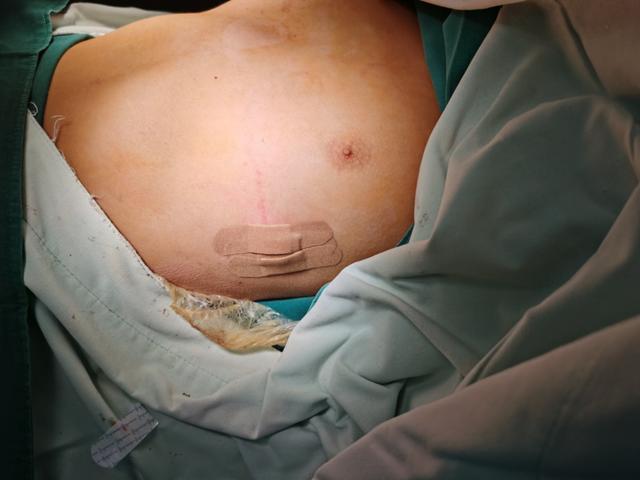 蓟州区人民医院创新引进漏斗胸矫正术(Nuss 手术)