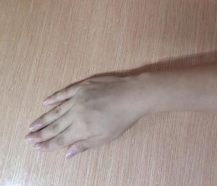 手臂断后几个月了,手指却仍然动不了?别急,我们来帮你