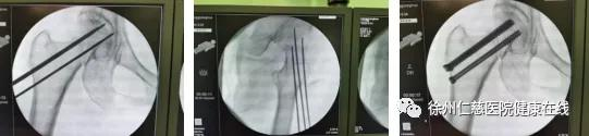 第 330 例——天玑骨科机器人精准导航,微创治疗股骨颈骨折