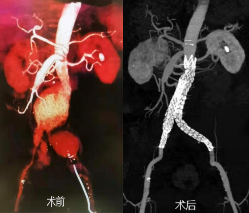 腹主动脉瘤破裂危在旦夕,多学科合力成功「拆弹」